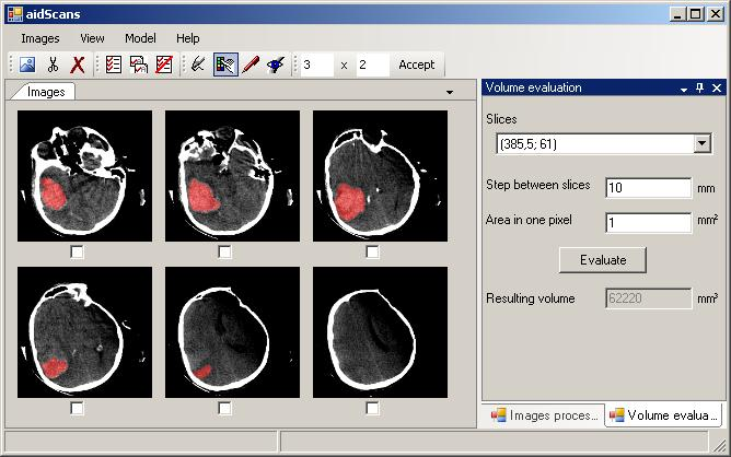 Click to view aidScans 4.7.1 screenshot